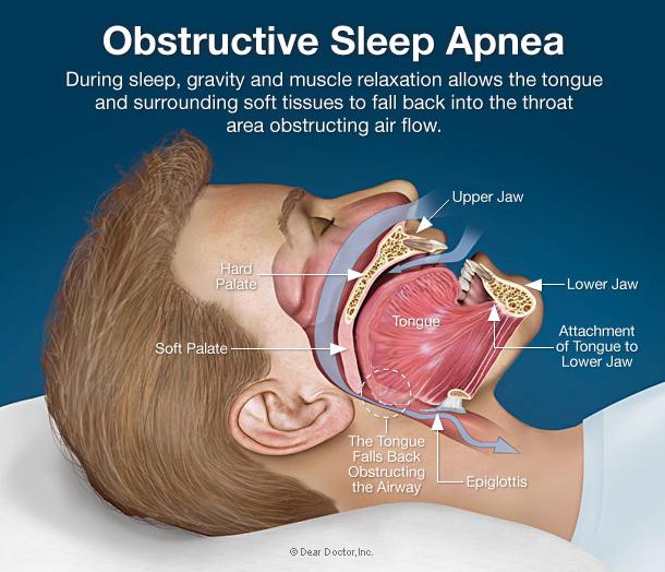 sleeping machine for sleep apnea