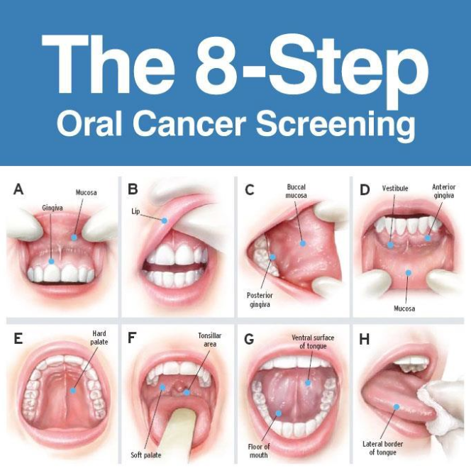 8 Step Oral Cancer Screening