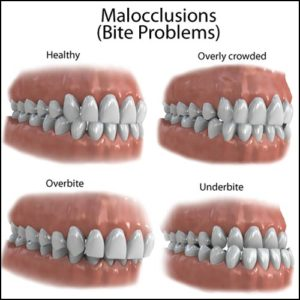 bite-problems-malocclusions_large