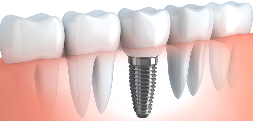 dental tooth implant,